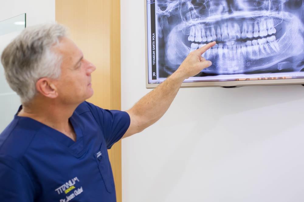dentistas dental titanium