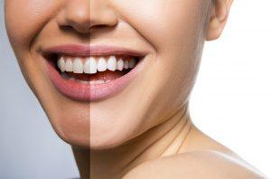 dientes más blancos - titanium dental